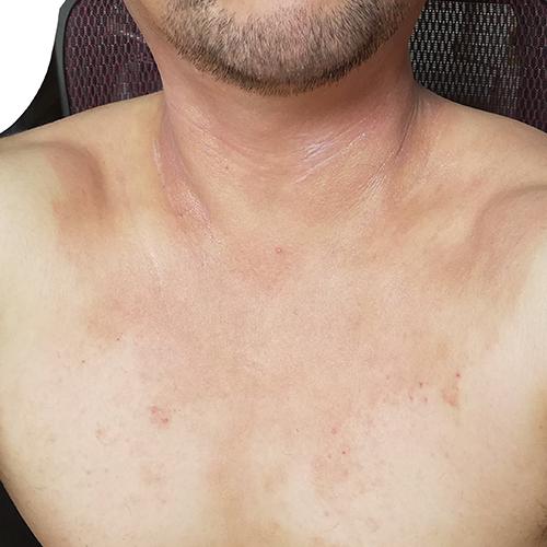 首の皮膚炎が治った?改善傾向へ