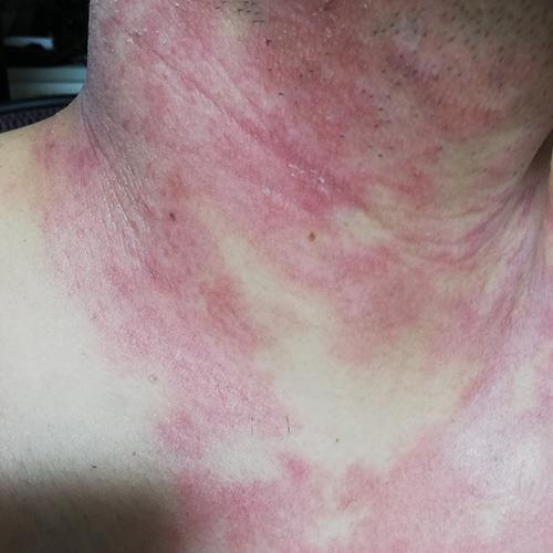 一旦治まったが再び広がる首の皮膚炎