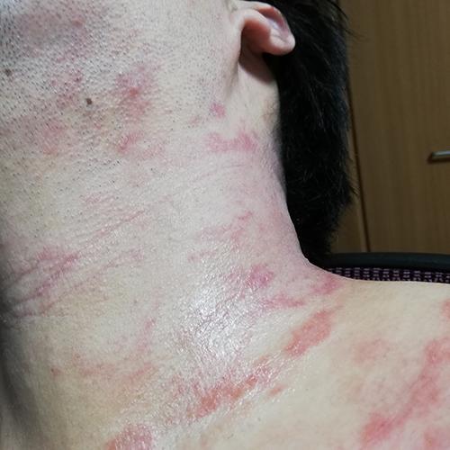 最初の首の皮膚炎
